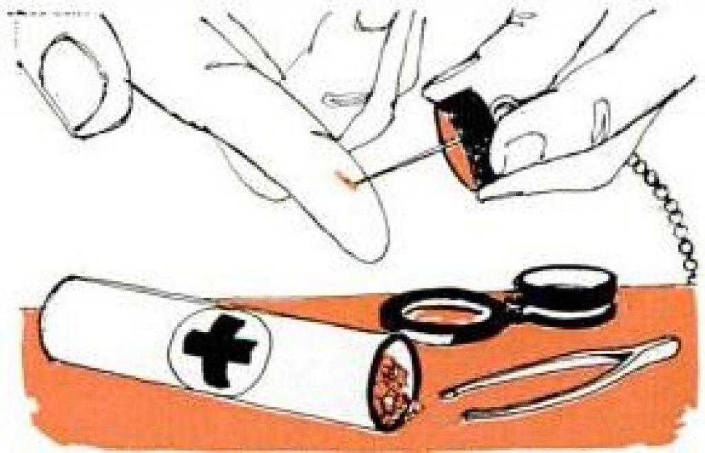 splinter removal kit